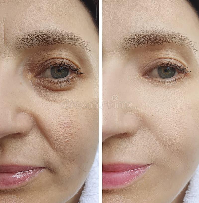 Αποτελέσματα προσώπου ρυτίδων γυναικών πριν και μετά από την επεξεργασία αντίθεσης στοκ εικόνα με δικαίωμα ελεύθερης χρήσης