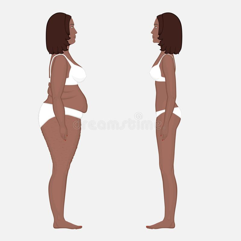 Απώλεια ανθρώπινου σώματος anatomy_Weight σε μια πλευρά γυναικών αφροαμερικάνων ελεύθερη απεικόνιση δικαιώματος