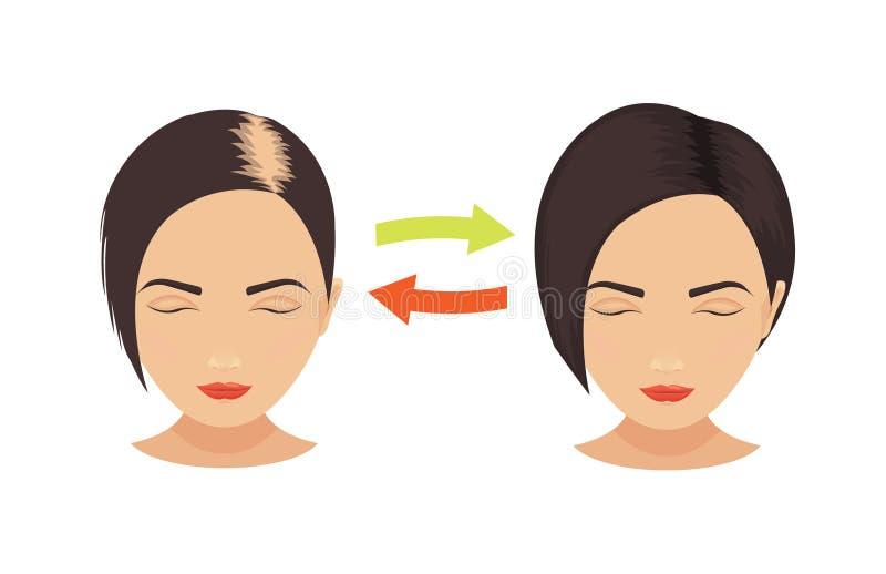 Απώλεια τρίχας στις γυναίκες διανυσματική απεικόνιση