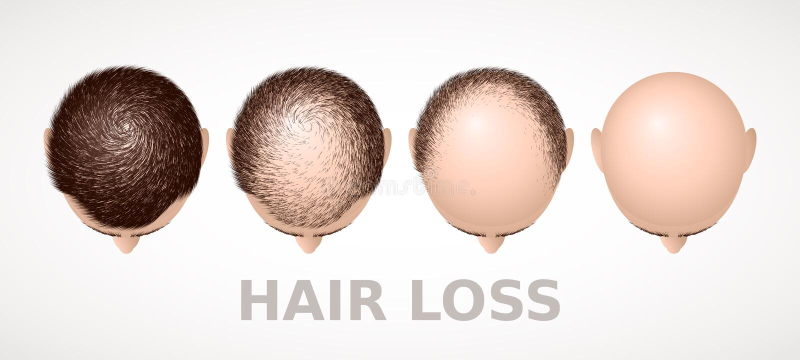 Απώλεια τρίχας Σύνολο τεσσάρων σταδίων alopecia διανυσματική απεικόνιση