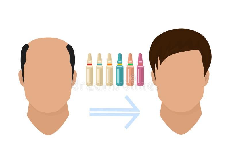 Αρσενική επεξεργασία απώλειας τρίχας Πριν και μετά από τα στάδια της διαδικασίας αύξησης τρίχας στη σκιαγραφία προσώπου Alopecia  διανυσματική απεικόνιση