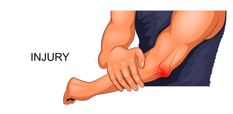 Αρσενικός αγκώνας τραυματισμών ελεύθερη απεικόνιση δικαιώματος