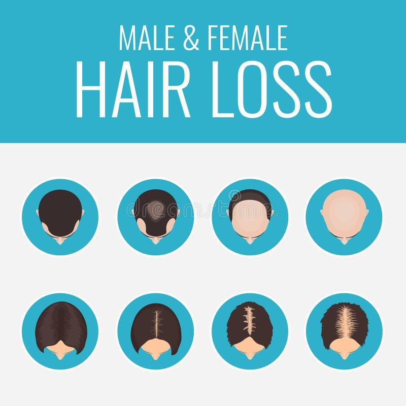Αρσενικό και θηλυκό σύνολο απώλειας τρίχας ελεύθερη απεικόνιση δικαιώματος
