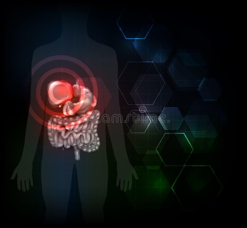 Ασθένεια ήπαρ απεικόνιση αποθεμάτων