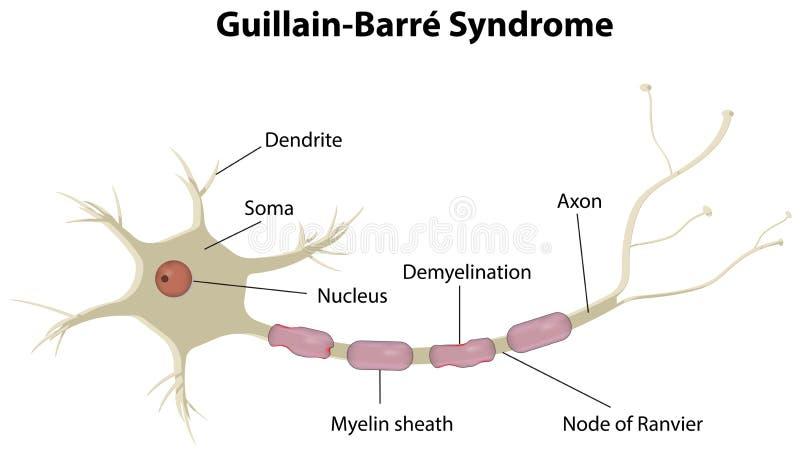 Ασθένεια μπαρών Guillain διανυσματική απεικόνιση