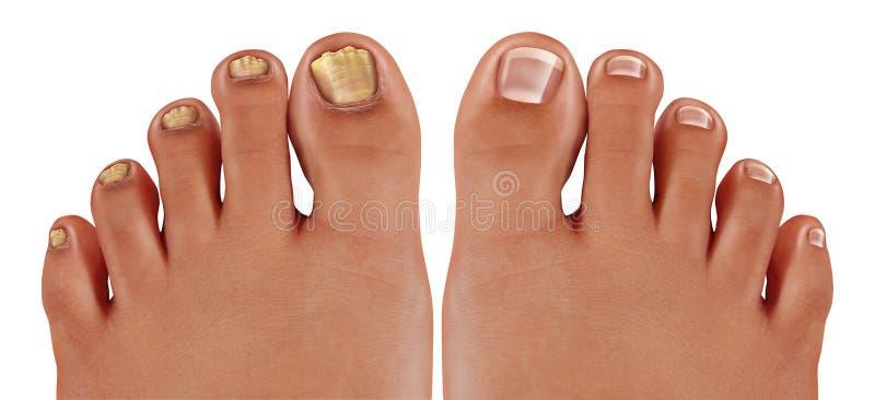 Ασθένεια ποδιών Onychomycosis διανυσματική απεικόνιση