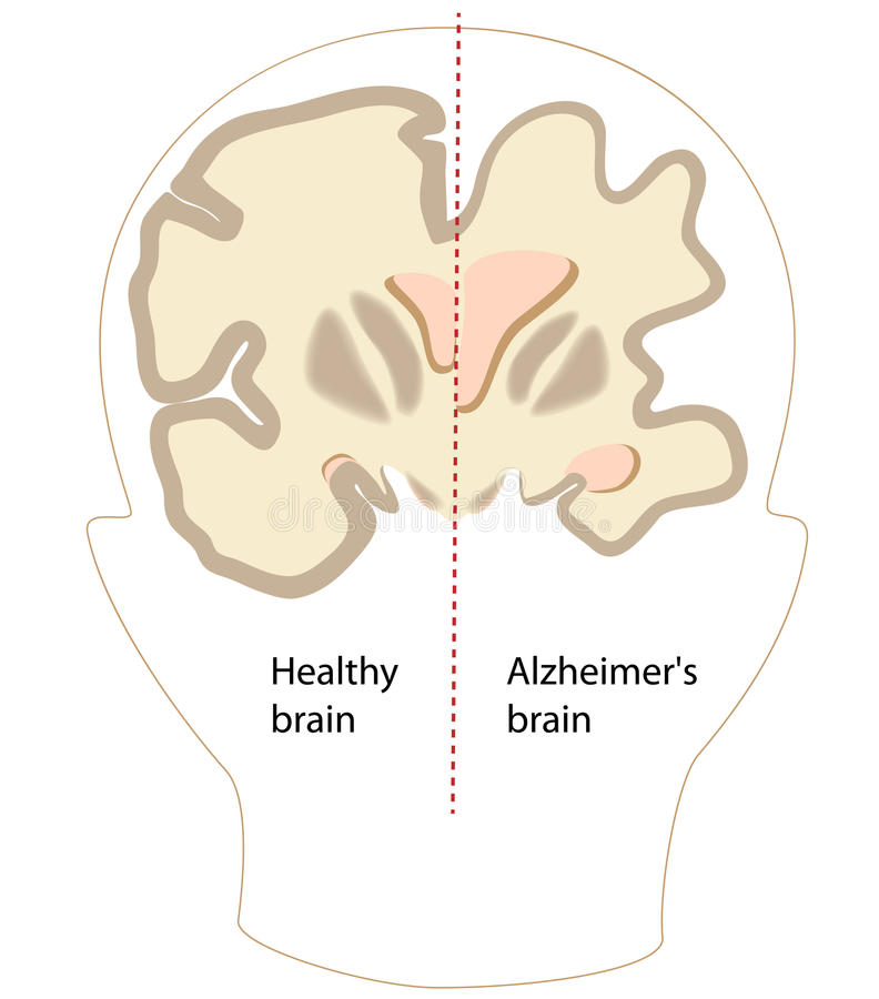 Ασθένεια του Alzheimer διανυσματική απεικόνιση