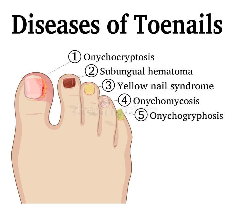 Ασθένειες Toenails διανυσματική απεικόνιση