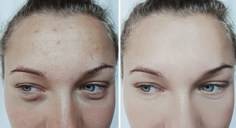 Ασθενής αναζωογόνησης θεραπείας ρυτίδων προσώπου γυναικών πριν και μετά από τη θεραπεία στοκ εικόνες