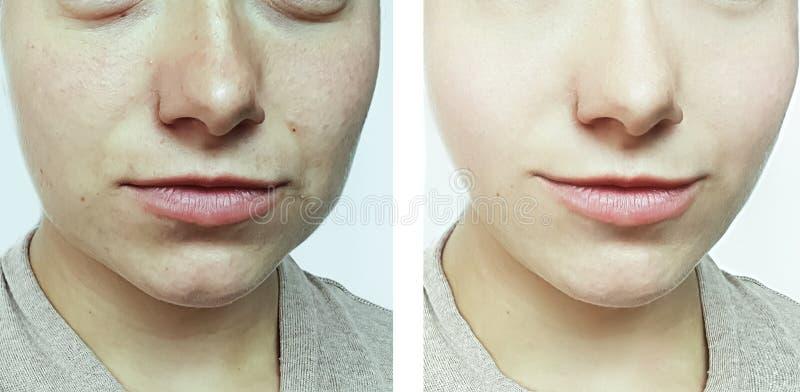Ασθενής θεραπείας ρυτίδων προσώπου γυναικών πριν και μετά από τη θεραπεία στοκ εικόνα