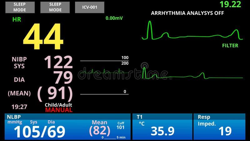 Ασθενής με χαμηλό σφυγμό, παρακολούθηση ζωτικών ιατρικών σημείων, διαγνωστικός αισθητήρας καρδιοσήματος απεικόνιση αποθεμάτων