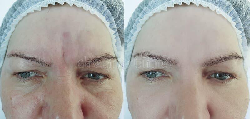 Ασθενής προσώπου ρυτίδων αφαίρεσης γυναικών biorevitalizationbefore και μετά από το regenerationtreatment στοκ εικόνες με δικαίωμα ελεύθερης χρήσης
