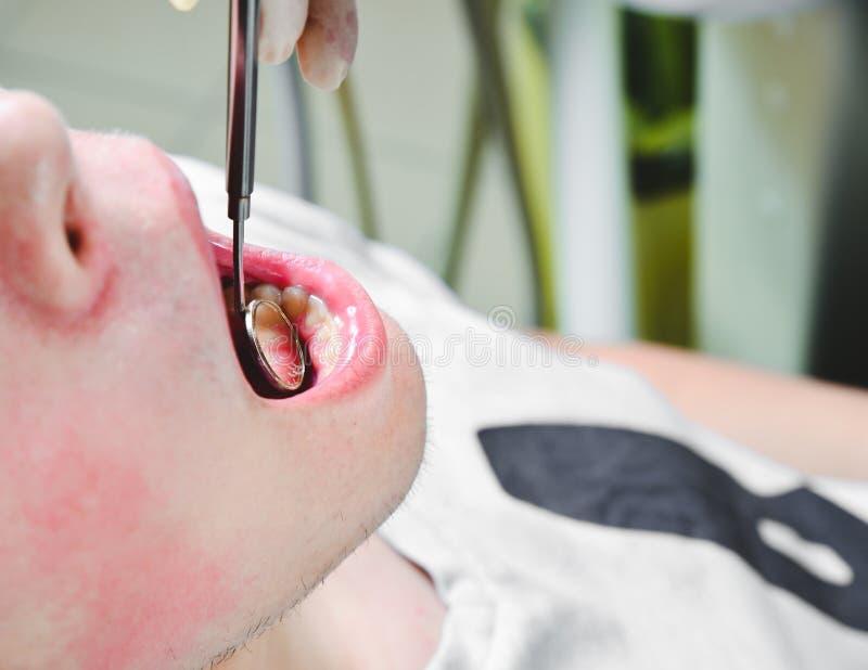 Ασθενής στο γραφείο οδοντιάτρων, που παίρνει τα άσπρα μεσοδόντια διαστήματα δοντιών της εξετασμένα με το φορητό καθρέφτη για τον  στοκ εικόνα