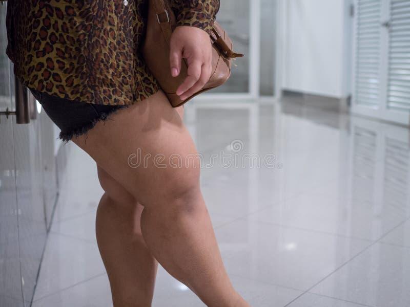 Ασιατικοί μηροί των παχιών γυναικών Φορά τα σορτς και τα μακρύς-sleeved πουκάμισα για να δει το υπερβολικό λίπος στοκ φωτογραφία με δικαίωμα ελεύθερης χρήσης