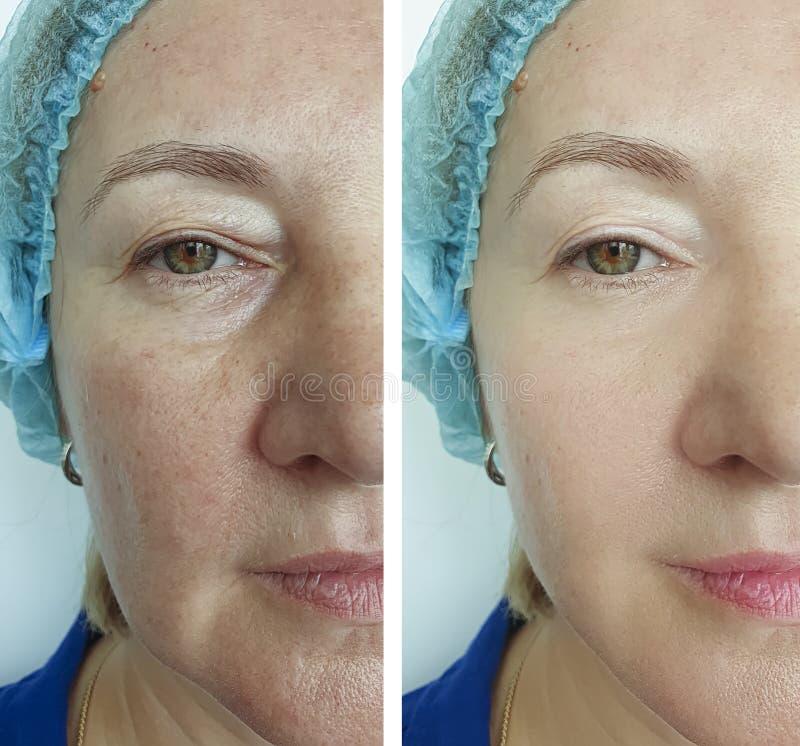 Αφαίρεση προσώπου ρυτίδων γυναικών πριν μετά από την κρεμώντας διόρθωση διαφοράς επεξεργασίας στοκ εικόνα