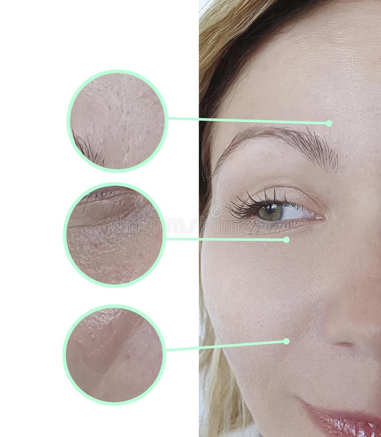 Αφαίρεση ρυτίδων ματιών προσώπου γυναικών πριν και μετά από την ενυδάτωση cosmetology αναζωογόνησης της επεξεργασίας στοκ φωτογραφία με δικαίωμα ελεύθερης χρήσης