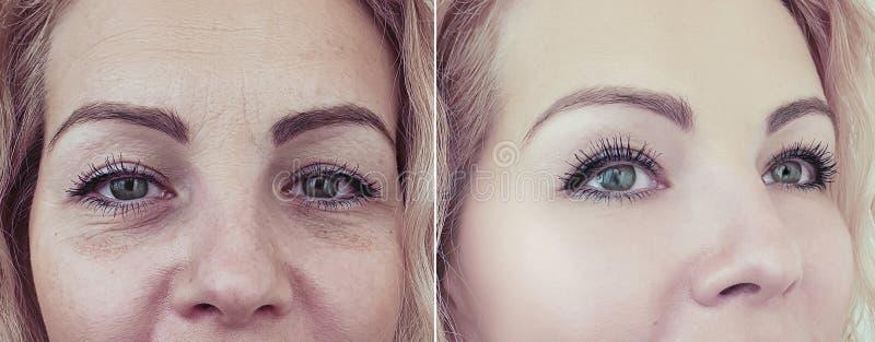 Αφαίρεση ρυτίδων προσώπου γυναικών μετά από την υπομονετική ένταση αναζωογόνησης διαφοράς επίδρασης στοκ εικόνα