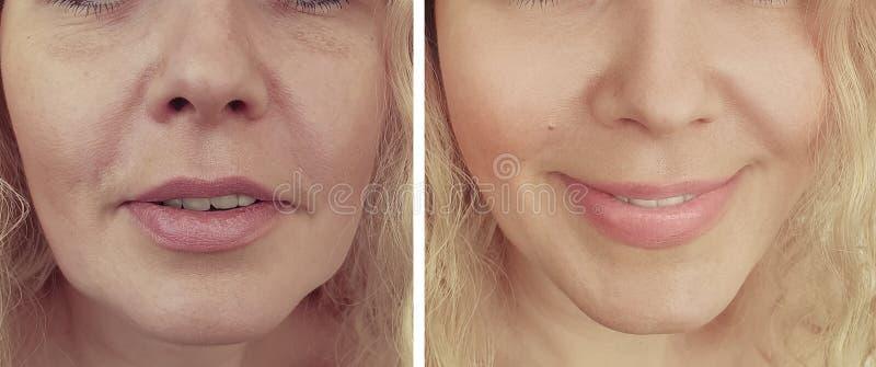Αφαίρεση ρυτίδων προσώπου γυναικών μετά από την υπομονετική ένταση αναζωογόνησης διαφοράς beautician επίδρασης στοκ εικόνες με δικαίωμα ελεύθερης χρήσης