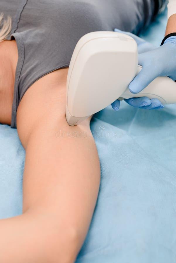 Αφαίρεση τρίχας Underarm στοκ εικόνες