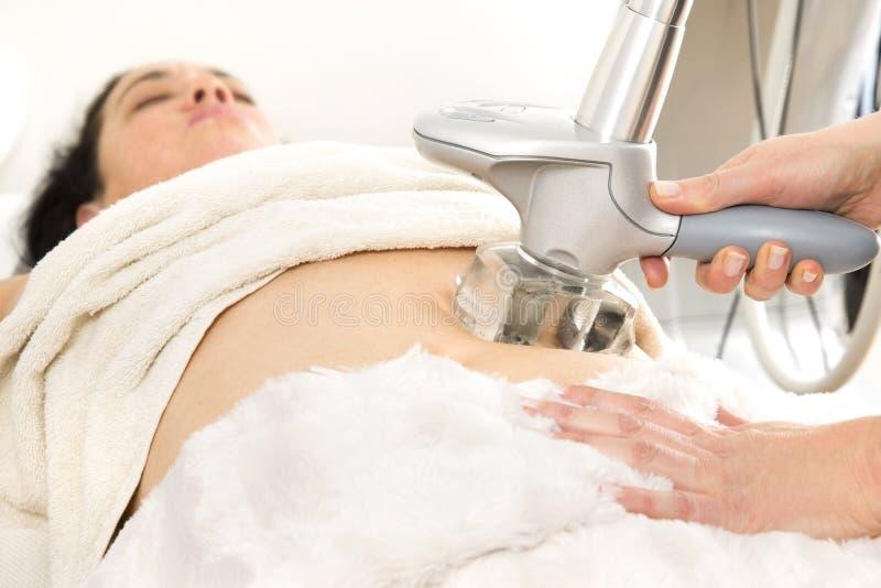 Αδυνάτισμα και cellulite επεξεργασία λέιζερ στην κλινική στοκ εικόνα με δικαίωμα ελεύθερης χρήσης