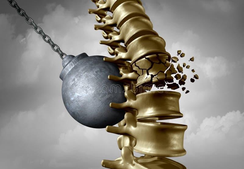 Βάσανο πόνου σπονδυλικών στηλών απεικόνιση αποθεμάτων