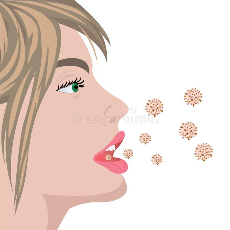 Βακτηριακό overgrowth γρίπης μόλυνσης ιών ελεύθερη απεικόνιση δικαιώματος