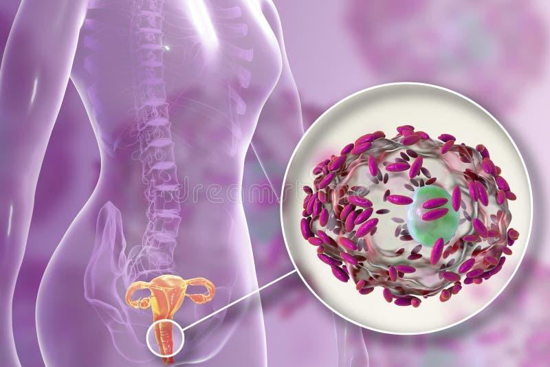 Βακτηριακό vaginosis, vaginalis Gardnerella βακτηριδίων διανυσματική απεικόνιση