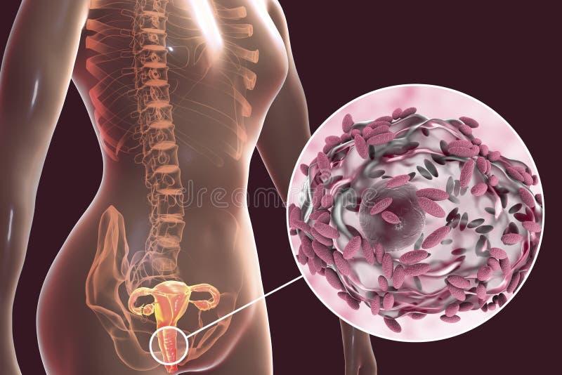 Βακτηριακό vaginosis, vaginalis Gardnerella βακτηριδίων ελεύθερη απεικόνιση δικαιώματος