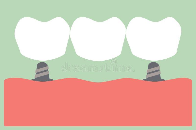 γέφυρα οδοντική διανυσματική απεικόνιση