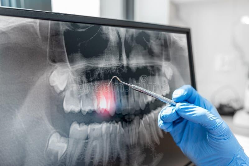 Γιατρός που δείχνει την ακτίνα X δοντιών στο όργανο ελέγχου υπολογιστών στοκ φωτογραφία