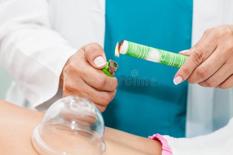 Γιατρός που εκτελεί μια θεραπεία moxibustion σε έναν νέο θηλυκό ασθενή στοκ εικόνες