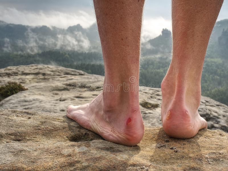Γυμνό πόδι το επίπονο τακούνι που τυλίγεται με στη φύση Πόδια ατόμων στοκ φωτογραφίες