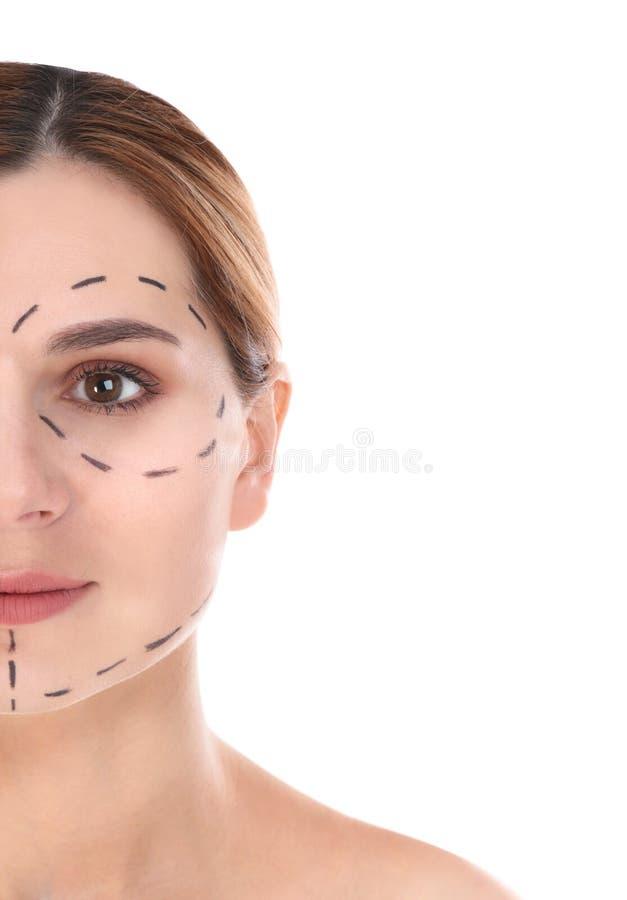 Γυναίκα με τα σημάδια στο πρόσωπο για τη λειτουργία αισθητικής χειρουργικής στοκ εικόνα