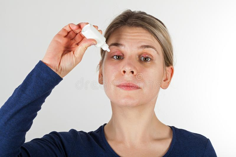 Γυναίκα με τη βαριάς μορφής μόλυνση ματιών στοκ φωτογραφίες