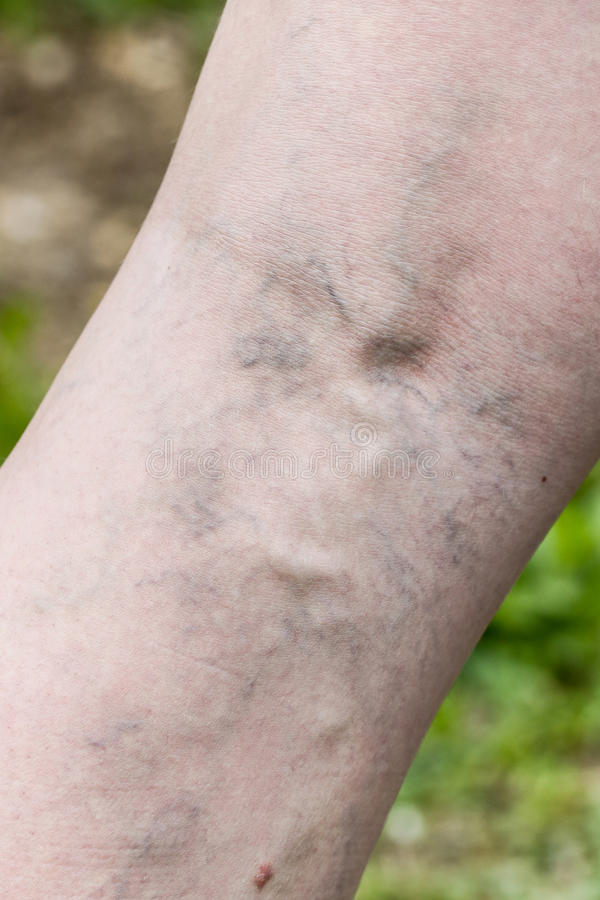 Γυναίκα με τις επίπονες κιρσώδεις και φλέβες αραχνών στα πόδια της στοκ φωτογραφία με δικαίωμα ελεύθερης χρήσης