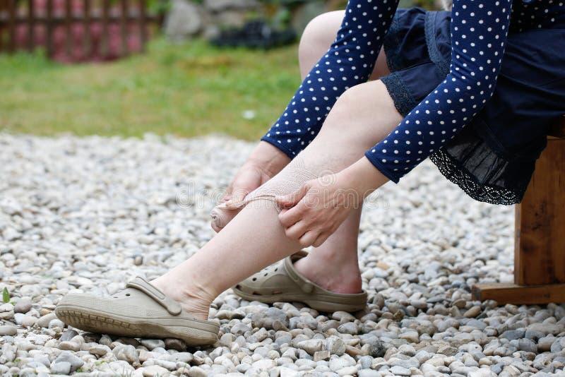 Γυναίκα με τις κιρσώδεις φλέβες που εφαρμόζει τον επίδεσμο συμπίεσης στοκ φωτογραφία με δικαίωμα ελεύθερης χρήσης