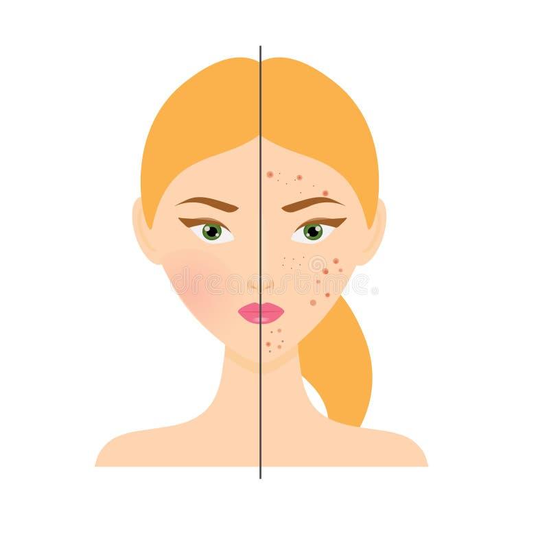 Γυναίκα με το πρόβλημα δερμάτων ακμής και το υγιές δέρμα επίσης corel σύρετε το διάνυσμα απεικόνισης ελεύθερη απεικόνιση δικαιώματος