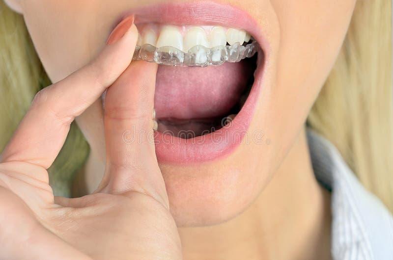Γυναίκα με το mouthguard στοκ εικόνες με δικαίωμα ελεύθερης χρήσης
