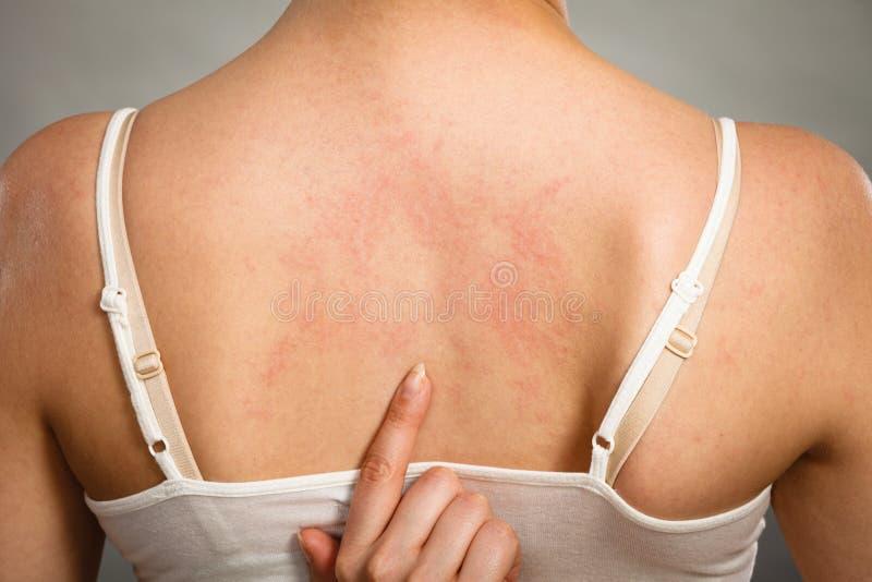γυναίκα που γρατσουνίζει την itchy πίσω με την αναφυλαξία αλλεργίας στοκ εικόνα