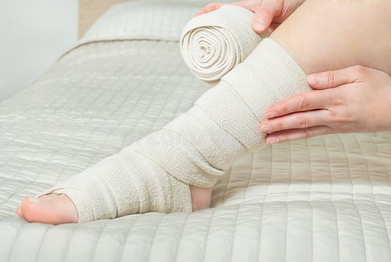 Γυναίκα που εφαρμόζει τον ελαστικό επίδεσμο συμπίεσης ως πρόληψη θρόμβωσης μετά από την κιρσώδη χειρουργική επέμβαση στοκ φωτογραφία