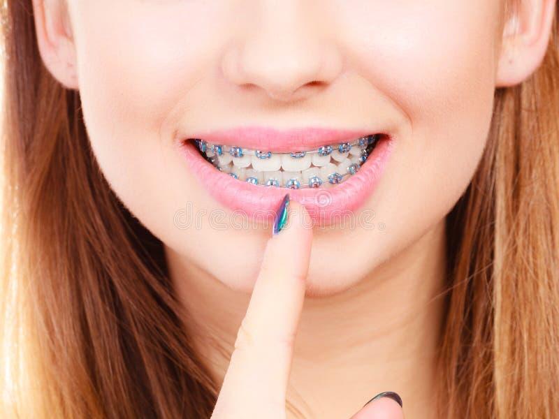 Γυναίκα που παρουσιάζει δόντια της με τα στηρίγματα στοκ εικόνες με δικαίωμα ελεύθερης χρήσης