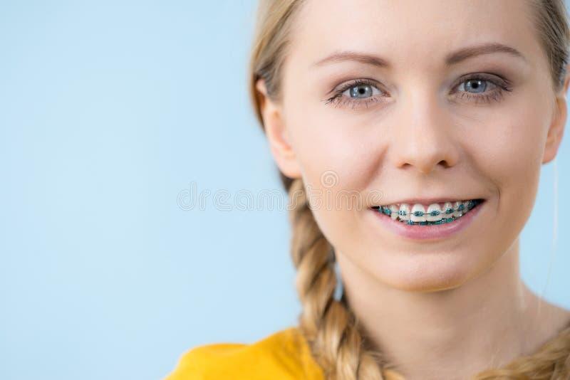 Γυναίκα που παρουσιάζει δόντια της με τα στηρίγματα στοκ εικόνες