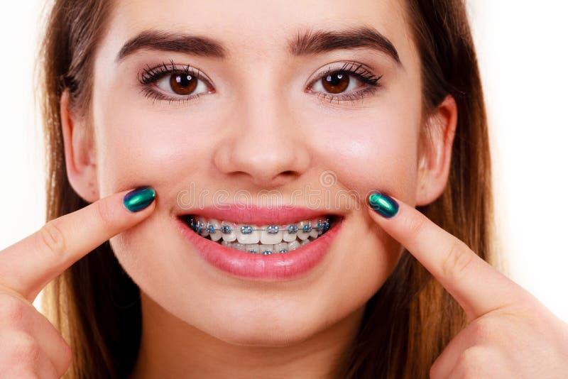 Γυναίκα που παρουσιάζει δόντια της με τα στηρίγματα στοκ φωτογραφία με δικαίωμα ελεύθερης χρήσης