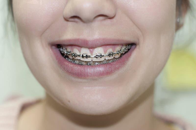 Γυναίκα που χαμογελά παρουσιάζοντας οδοντικά στηρίγματα στοκ εικόνες με δικαίωμα ελεύθερης χρήσης