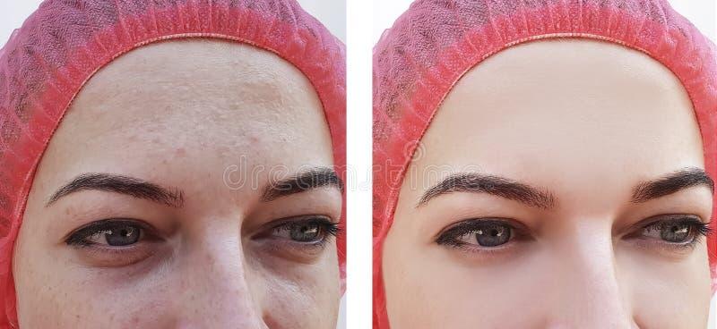 Γυναίκα προσώπου, ρυτίδες των ματιών πριν και μετά από τις διαδικασίες στοκ εικόνες