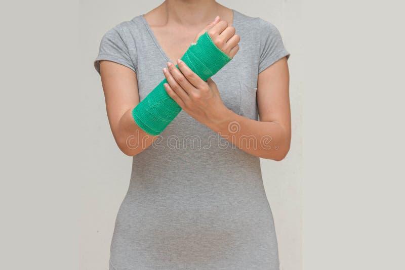 Γυναίκα τραυματισμών που φορά sportsware με πράσινο χυτό σε διαθεσιμότητα και το βραχίονα, στοκ εικόνες με δικαίωμα ελεύθερης χρήσης