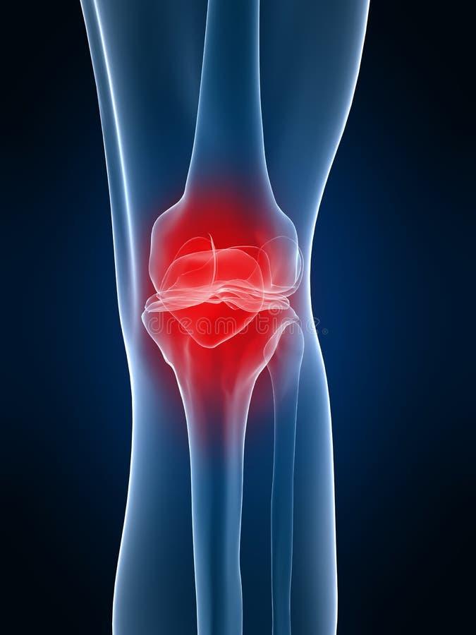 γόνατο επίπονο απεικόνιση αποθεμάτων