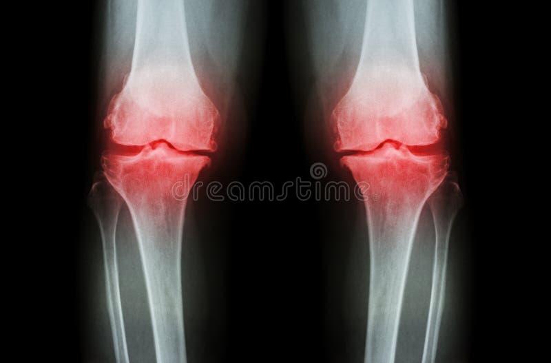 Γόνατο οστεοαρθρίτιδας (γόνατο OA) Η ακτίνα X ταινιών και το δύο γόνατο (μπροστινή άποψη) παρουσιάζει στενό κοινό διαστημικό (κοι στοκ φωτογραφίες