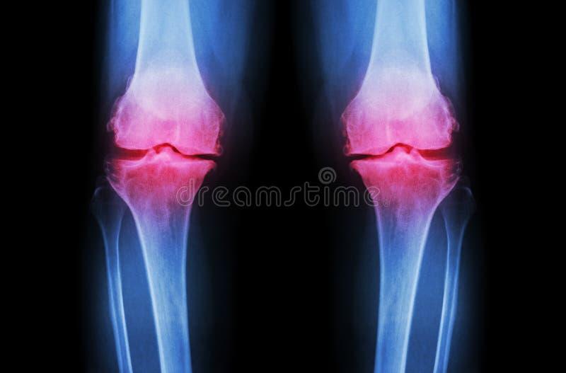 Γόνατο οστεοαρθρίτιδας (γόνατο OA) Η ακτίνα X ταινιών και το δύο γόνατο (μπροστινή άποψη) παρουσιάζει στενό κοινό διαστημικό (κοι στοκ εικόνα