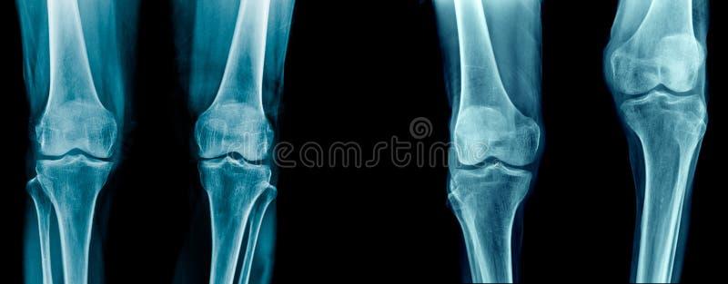 Γόνατο OA και γόνατο παραμόρφωσης στοκ φωτογραφία με δικαίωμα ελεύθερης χρήσης